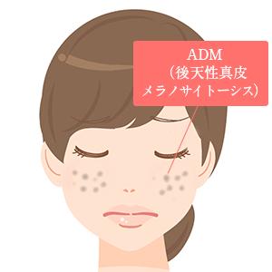 ADM(後天性真皮メラノサイトーシス)イメージ