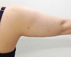 リポビーン・リポライシス症例