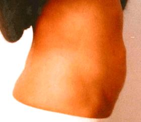 脂肪溶解注射ミケランジェロ症例