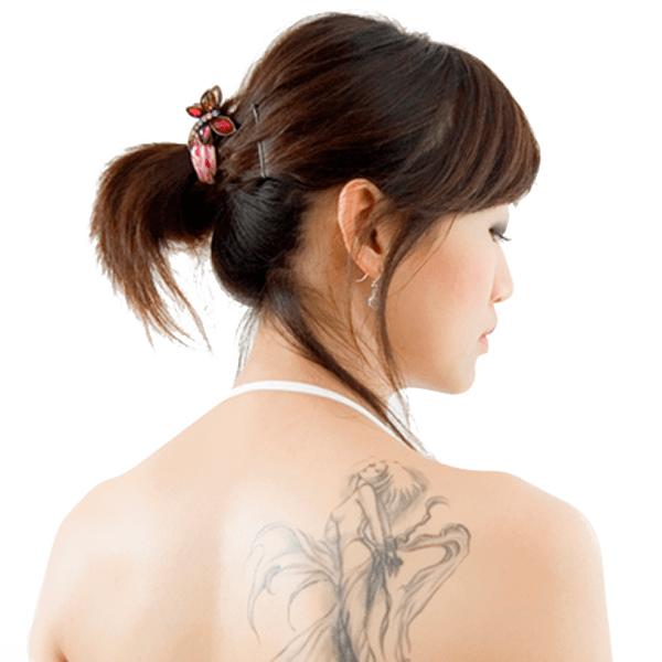 刺青除去とは
