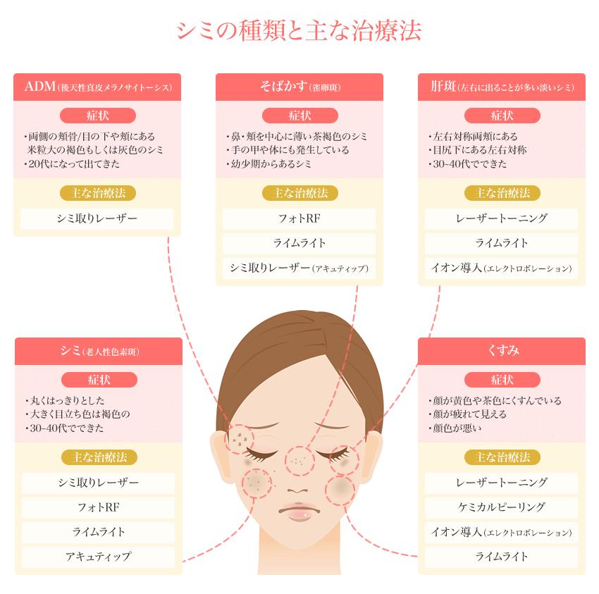 シミの種類と主な治療方法