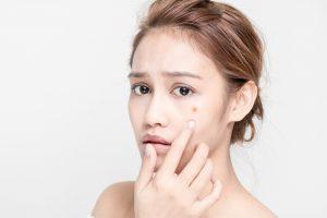 「シミに効果的な化粧品」にどこまで期待しますか? ~化粧品とレーザー治療の使い分けのススメ~