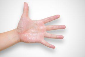 【手掌多汗症】 治療の必要レベルはドコ? 私の手汗問題と対策