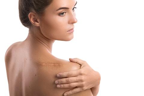 傷跡治療まとめ|傷跡ごとに適した治療法とは?種類・費用を徹底解説