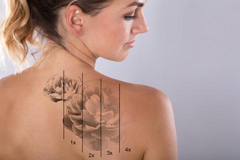 タトゥー除去まとめ|タトゥー除去の4つの治療法・隠す方法を徹底解説
